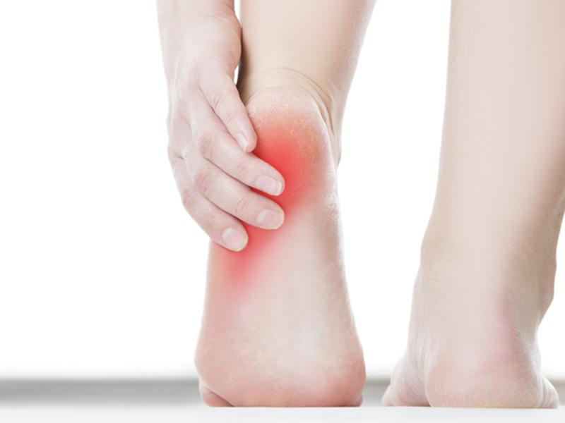 足底腱膜炎の治し方 | 都立大整形外科クリニック