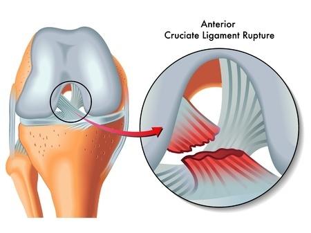 前十字靭帯(ACL)損傷 | 長野整形外科クリニック
