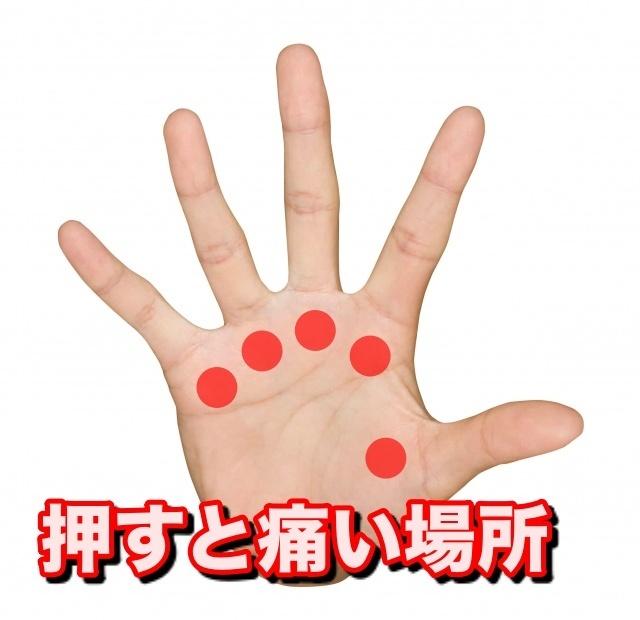指 の 方 ばね 治し