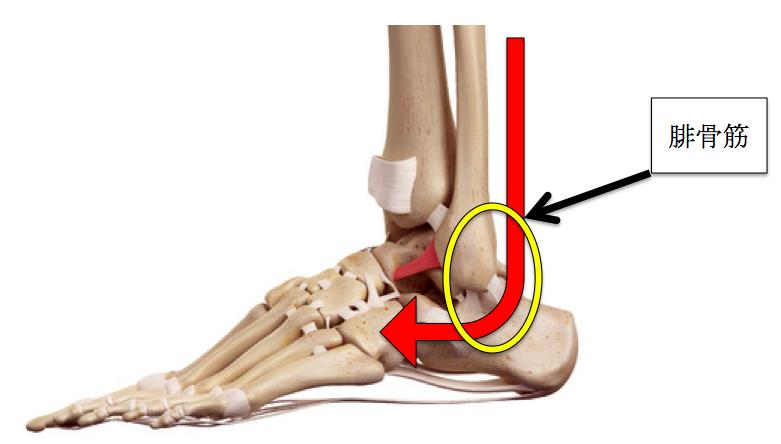 腓骨筋腱脱臼の手術 | AR-Ex 尾山台整形外科