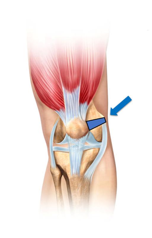 内側膝蓋大腿靭帯(MPFL)損傷 | AR-Ex 尾山台整形外科