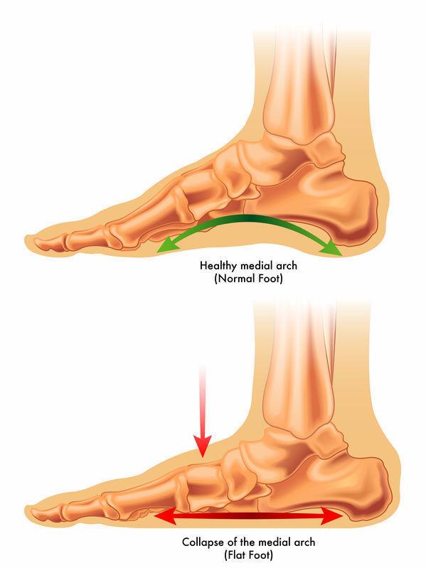 の 歩く と 痛い 足 裏
