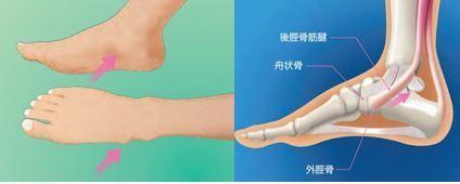 脛骨 テーピング 有 痛 外 性